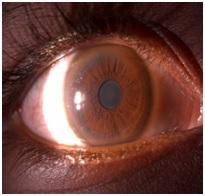Wilson's disease and the eye