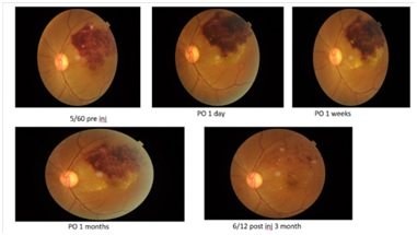 Outcome following single intravitreal injection of ranibizumab in branch retinal vein occlusion patients: a single centre experience
