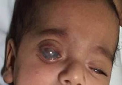 A rare case of congenital corneal clouding with anterior staphyloma of the eye